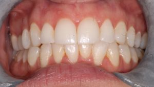 after CEREC and Invisalign cosmetic dentistry