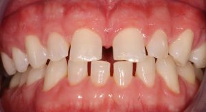 a patient before his combined Invisalign and CEREC cosmetic dentistry treatment