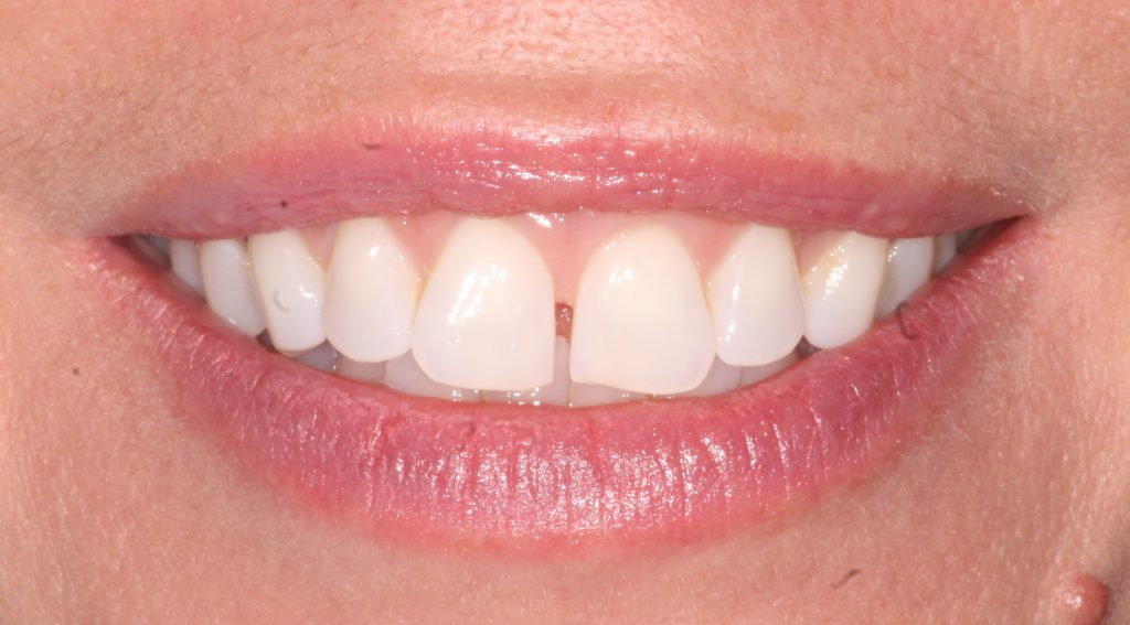 a patient before her Invisalign cosmetic dentistry treatment