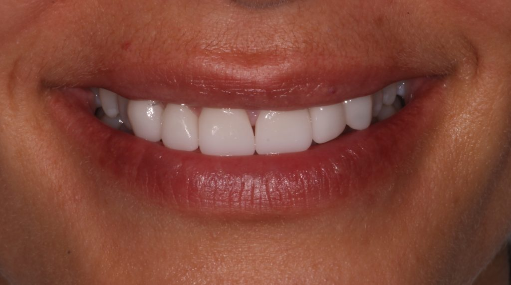 a patient after her CEREC cosmetic dentistry procedure