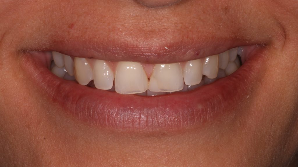 a patient before her CEREC cosmetic dentistry treatment