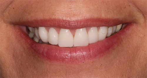 a happy patient after our CEREC cosmetic dentistry