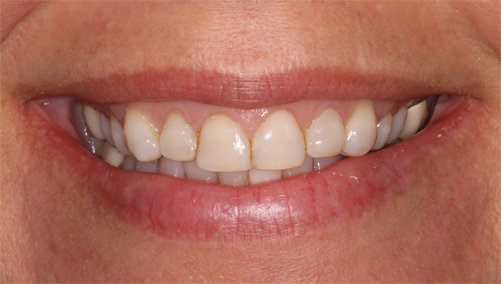 CEREC cosmetic dentistry