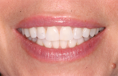 Invisalign cosmetic dentistry