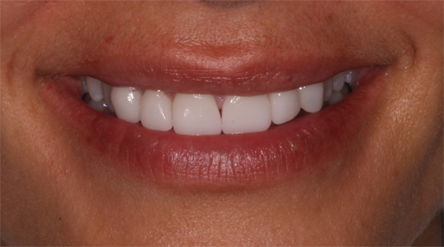 CEREC cosmetic dentistry treatment