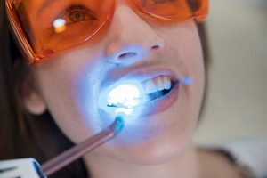 composite fillings in holly springs
